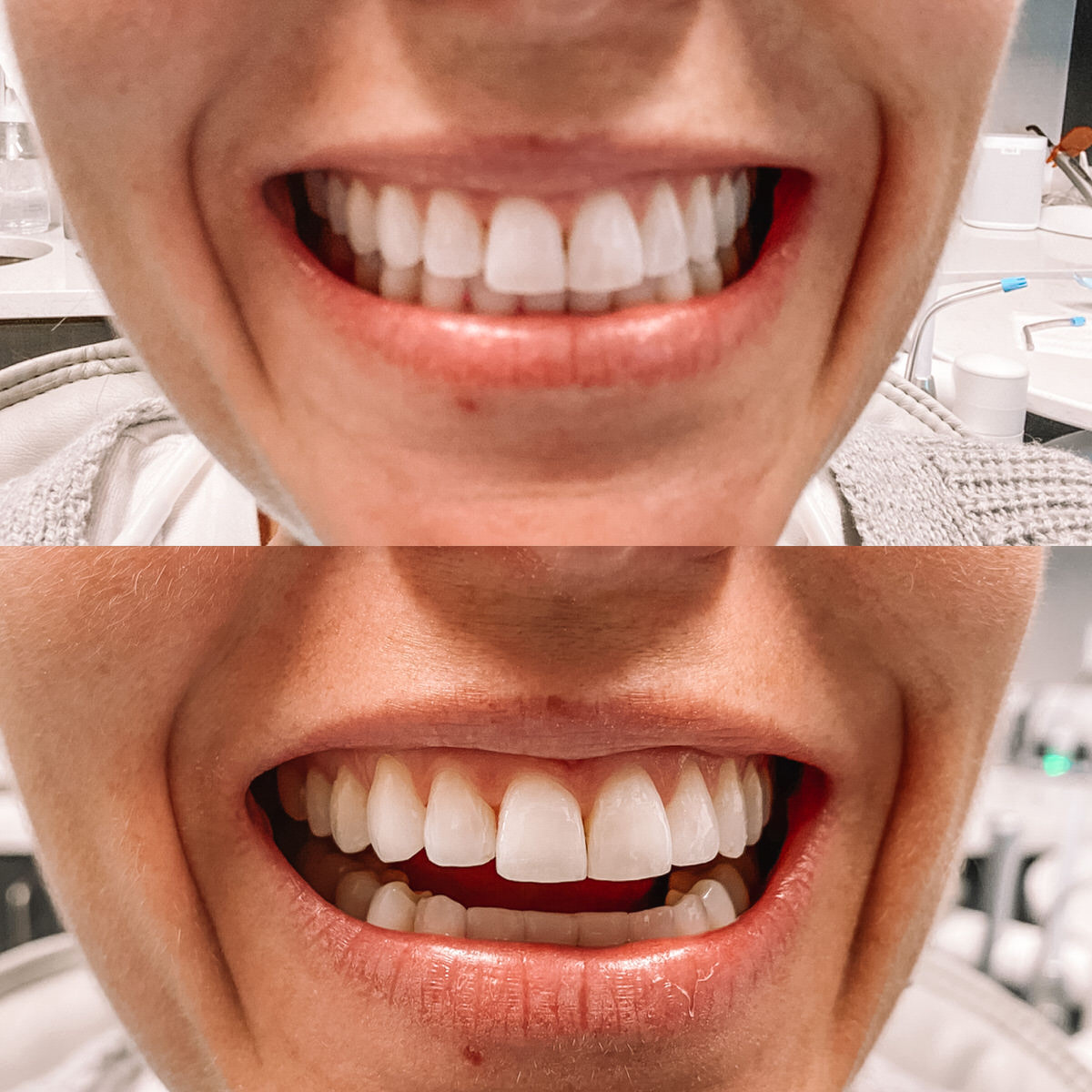 Invisalign Before And After Hello Adams Family